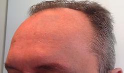 rughe frontali uomo post trattamento con tossina botulinica