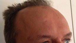 rughe frontali post trattamento con tossina botulinica