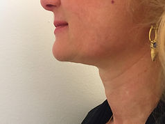 mento donna post trattamento con fili di trazione