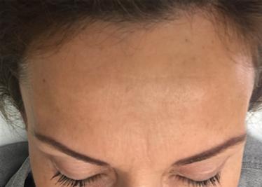 rughe frontali donna post trattamento con tossina botulinica