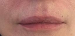 labbra donna trattate con filler di acido ialuronico