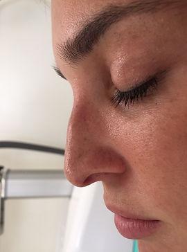 naso donna