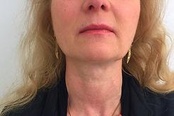 rughe sotto al mento donna post trattamento con fili di trazione