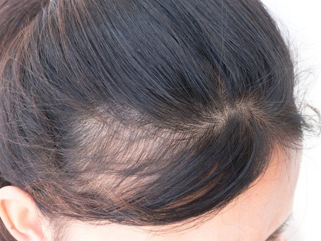 Top 3 reasons for hair loss & thinning in women.