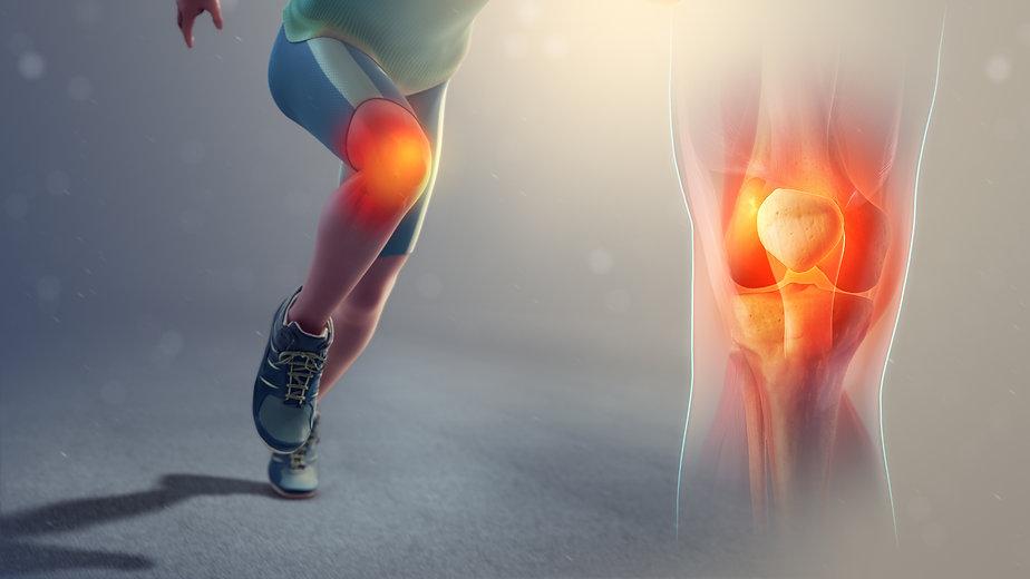 Runners-knee_SAG.jpg