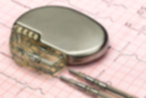 Close up of a pacemake on Electrocardiog