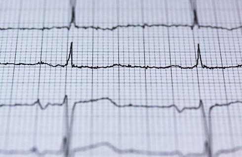 mobiles-ekg-herzinfarkt-schlaganfall-med