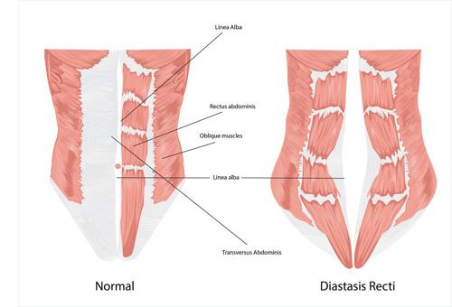 Postnatal Care 2: Understanding Diastasis Recti (Abdominal Muscle Separation).