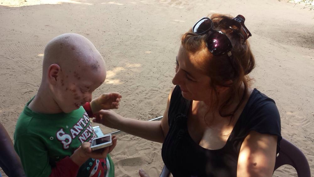 Ana Cristina con un niño albino