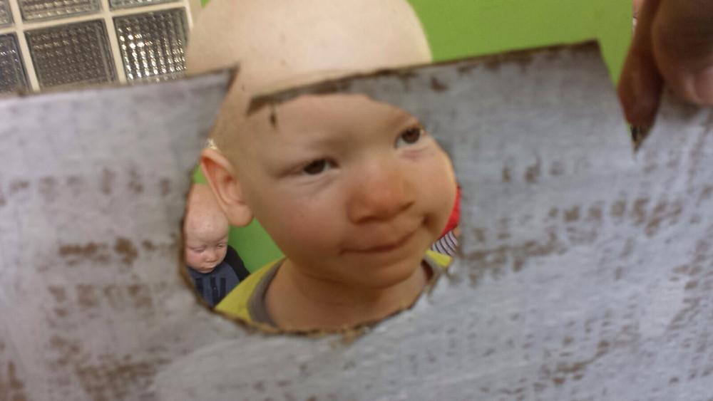 niño albino