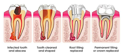 root canal.png