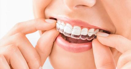 invisalign-dentist.jpg