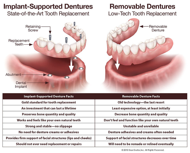 implant-supported-dentures-vs-removable-