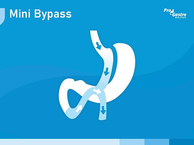 mini-bypass.jpg