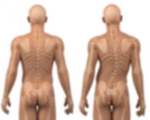 tratamento-escoliose-clinica-vertebrata-