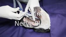 Palatine nerve block