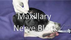 Maxillary nerve block