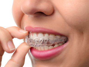 Clear braces, are they for you?