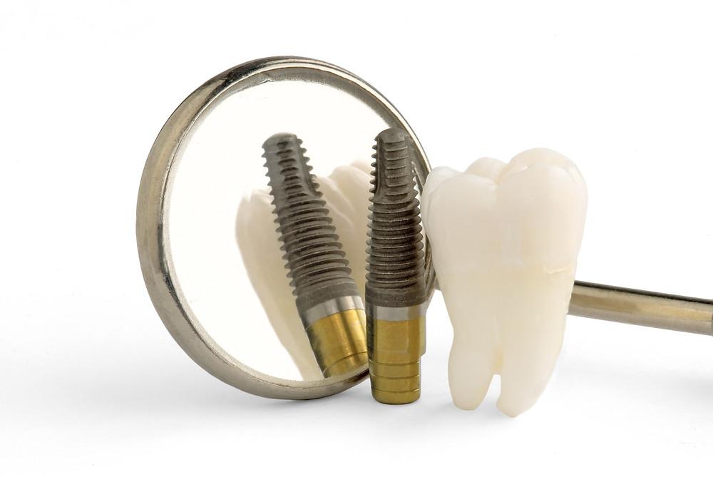 Dr. Dave's Blog, Dentist, Prosthodontist, General Dentistry, Dental Implants, Beer, Pizza