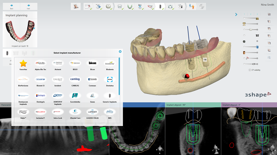 Dr. Dave, Dr. David P. Alfaro, Dentist, Richmond Dentist, Prosthodontist, Vancouver Dentist, Beer, Wings, Dental Implants