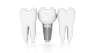 """Are dental implants """"permanent"""" and """"painless""""?"""