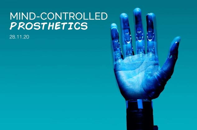Mind-Controlled Prosthetics