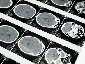 Neurocriminology: Ethical and Moral dimensions