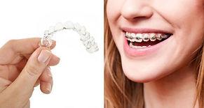 ostéopathie et ortodontie