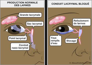 conduit_lacry_bouché.png