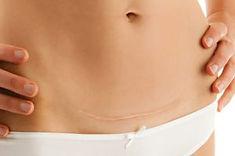 cicatrice-cesarienne-1-300x199.jpg