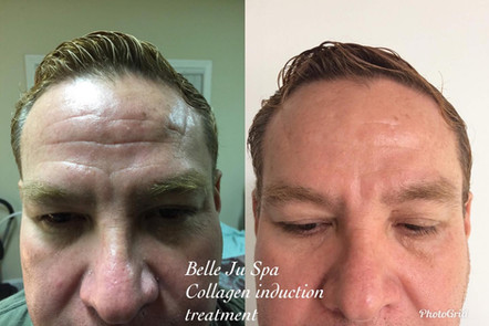 Collagen Induction