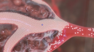 360 video of tumor.png