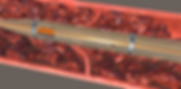 thrombus_in_vein2.png
