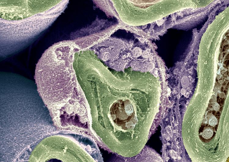 Schwann Cells Keep Signals Strong