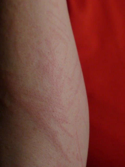 skin-rash-on-arm
