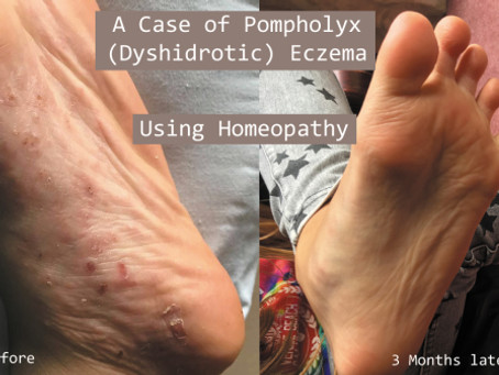 Pompholyx (Dyshidrotic) Eczema Treated By Homeopathy