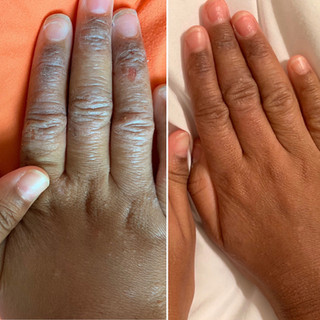 eczema-3.jpg
