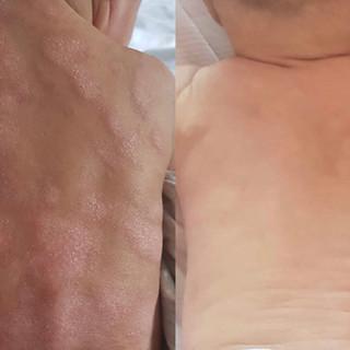 infantile-eczema-2.jpeg
