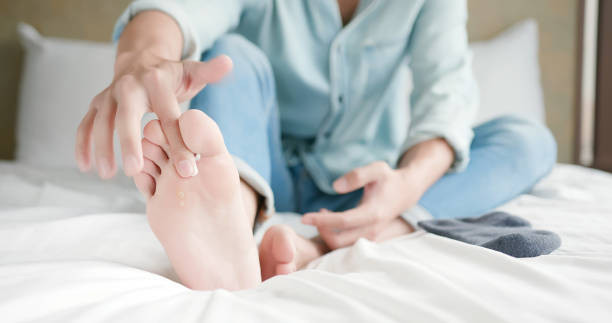 What Do Nail Fungus, Athlete's Foot & Jock Itch Have In Common?