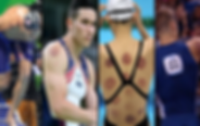 olympic-cupping-1080x623_orig.png