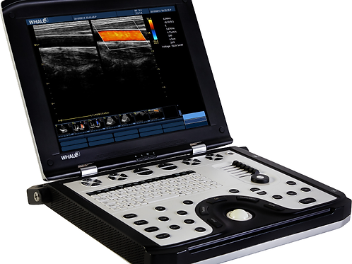 Whale Sigma P5 Portable Ultrasound