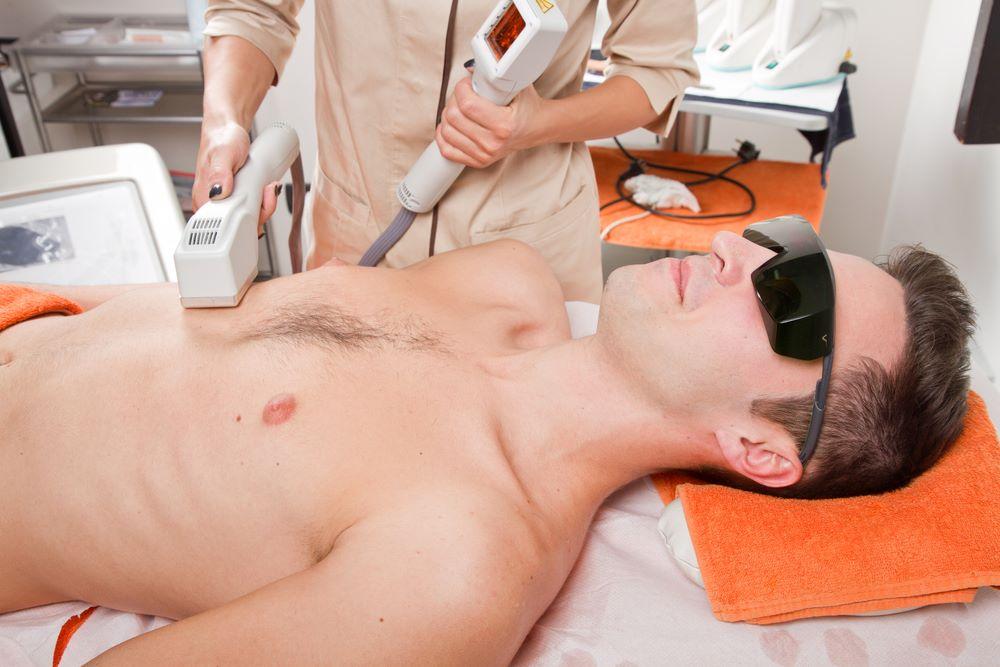 Chest or back laser removal