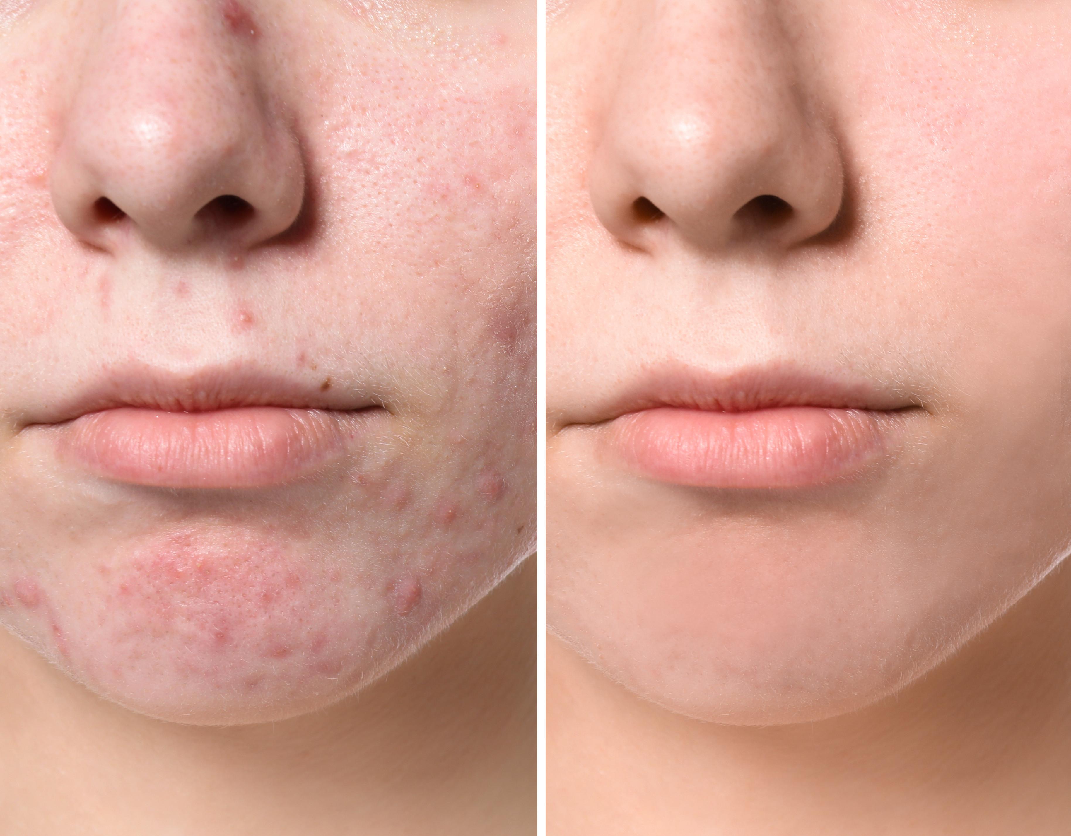 75 minutes Acne care sensitive
