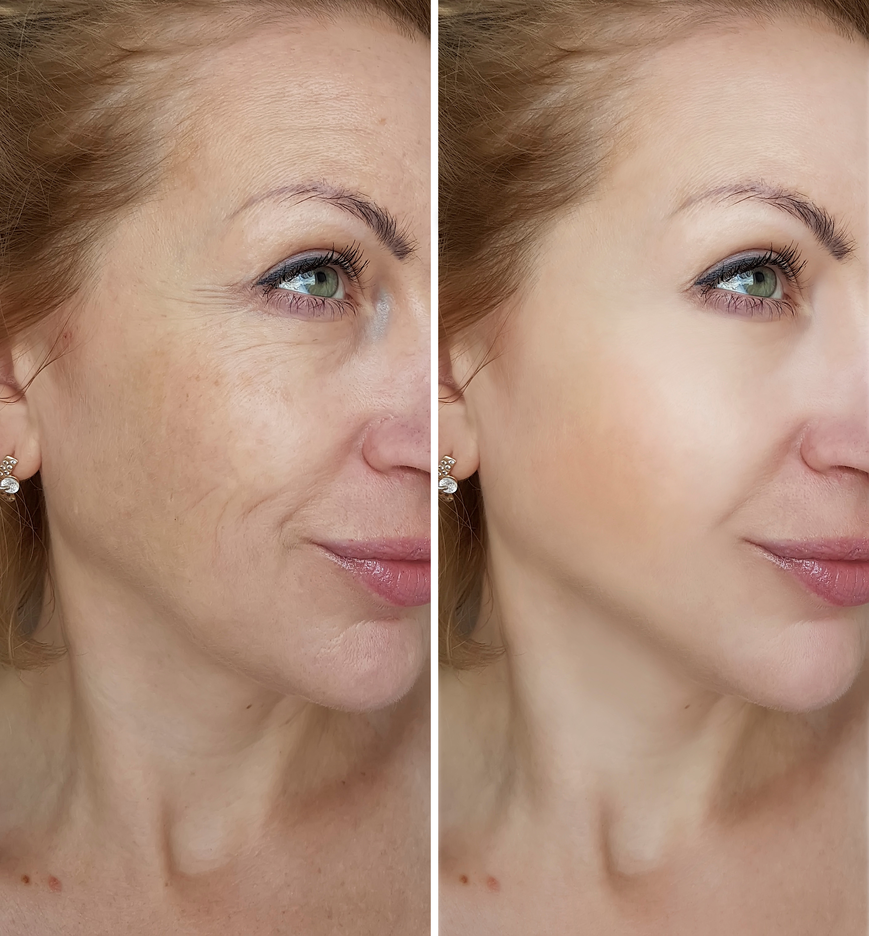 75 minutes Anti-aging facial