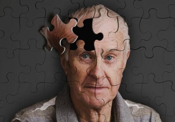 demans Alzheimer.jpg
