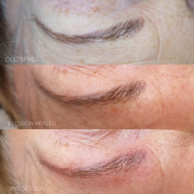 Botched Ink Tattoo Removal