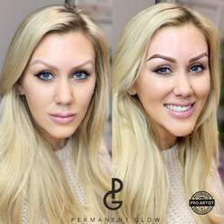 Amazing Before & After results