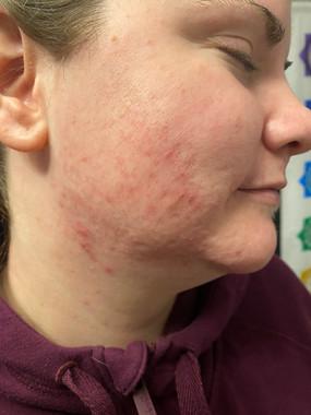 Acne Lift Facial Treatments