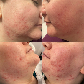 Before & Afters of Acne Lift Facial Treatments