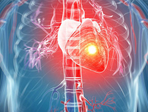 Les crises cardiaques : Causes, symptômes et traitement naturel